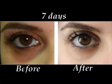 7 Best Treatments For Eye Circles by How To Remove Eye Circles In 7 Days Diy