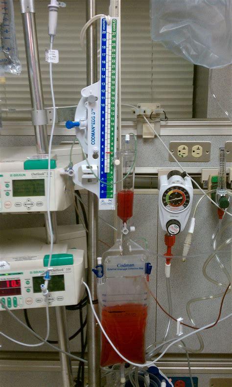 codman evd drain external ventricular drain wikipedia