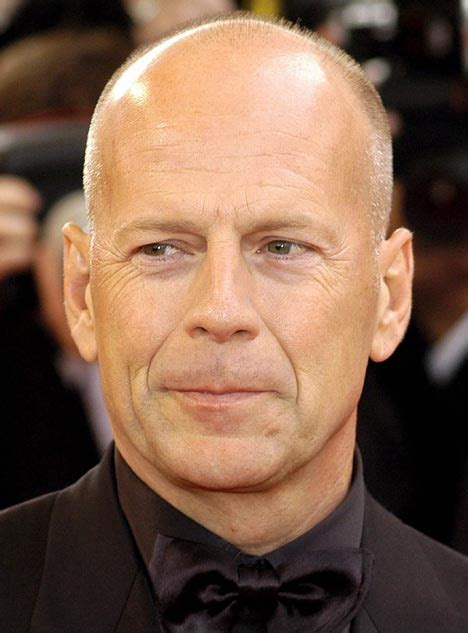 Bruce Willis Likes Them by Nasolabial Fold Wrinkles Around Due To After