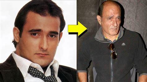 akshay khanna hair transplate what happened to akshaye khanna youtube