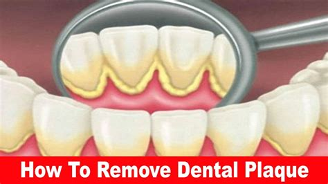 how to remove plaque at home how to remove plaque and