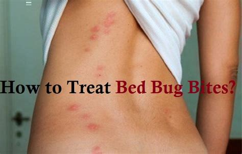 treat bed bug bites