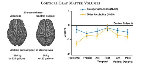 Brain Shrinks To Detox At by Alcoholism And The Brain An Overview