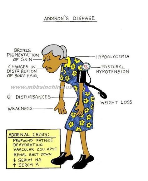 addisonian crisis s disease doctorshangout