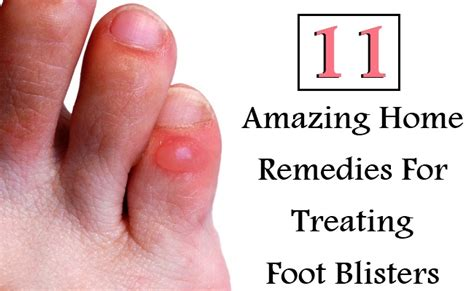 11 amazing home remedies for treating foot blisters