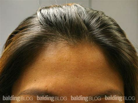 female receding juvenile vs mature hairline am i going bald with
