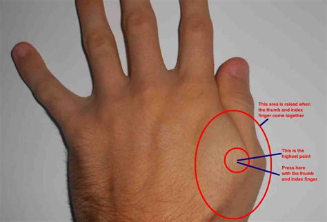 Thumb And Fingers carpal tunnel syndrome what is it symptoms exercise