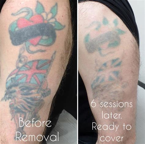 tattoos that have been removed laser removal birmingham uk