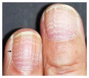 line on fingernail doctors gates multiple beau s lines