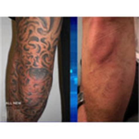 tattoo removal doctor tattoo removal photos news cost reviews locate