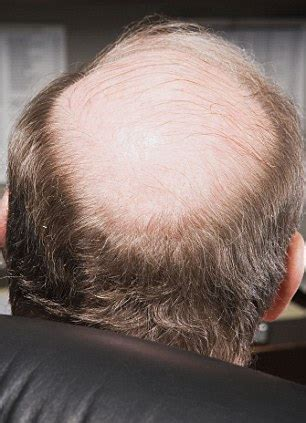 zzcover bald spot in the middle of hair the vire cure for baldness scientists inject patient
