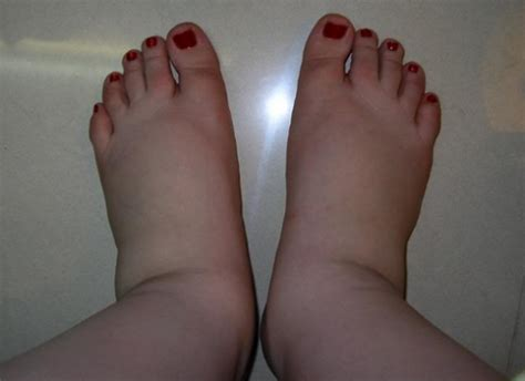 what to do for swollen feet after c section edema how to avoid swollen feet and ankles pa foot and