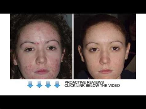 Osbourne Needs To Discover Proactive by Proactive Reviews Will Proactive Help You To Cure Acne