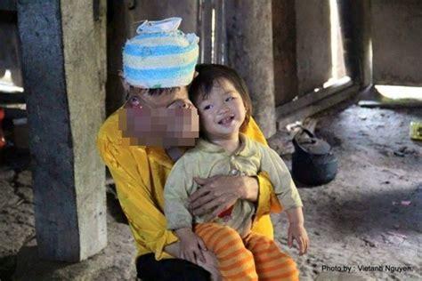 bệnh lạ khiến người đ 224 n b 224 phải mang gương mặt quỷ ở việt nam