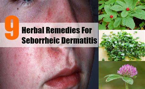 natural treatment for seborrheic dermatitis cradle cap 9 excellent herbal remedies for seborrheic dermatitis