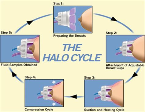 papanicolaou test the halo breast pap test system