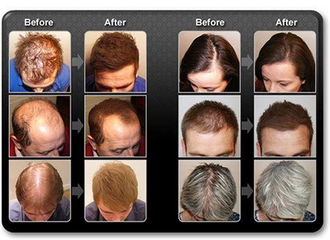 Kaminomoto Hair Growth Accelerator 2 Upgrade streuhaar sch 252 tthaar haarverdichtungsspray mane
