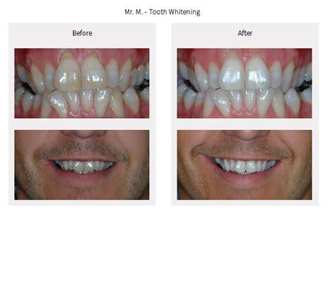 tooth whitening gallery ilkley dentist leeds