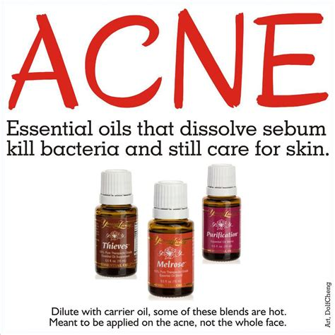 Treating Acne With Essential Oils remedies for acne benefits and drawbacks