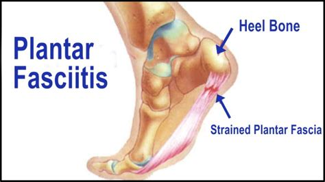 What Causes Planters Fasciitis by Plantar Fasciitis
