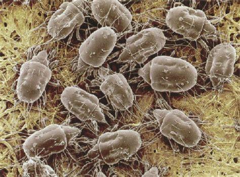 microscopic bugs  eat  dead skin cells