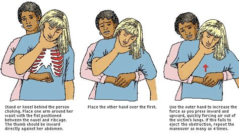 how to do the heimlich on a how to do the heimlich maneuver indoindians