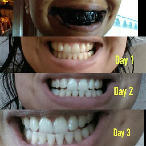 activated charcoal teeth ideas  pinterest