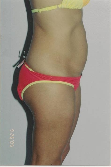 C Section And Tummy Tuck Together by Abdominoplasty Before After Photos Dr Wisnicki A