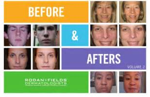 Home Design Studio Pro Download rodan and fields before and after results