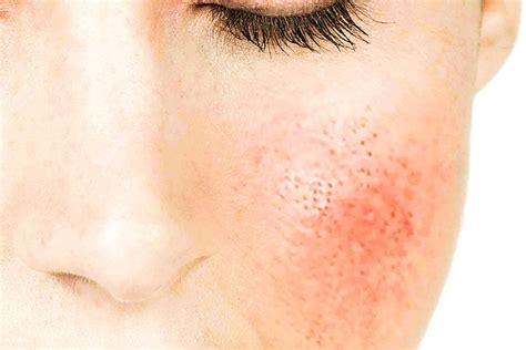c 243 mo evito la irritaci 243 n en la piel de mi rostro y como cuidarlo