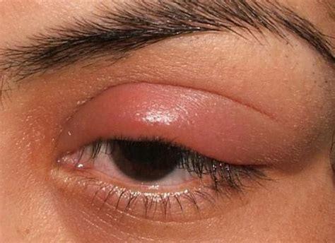 eye swollen eye when blinking why hurt sharp in left eye socket when i blink sore