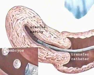bed rest after ivf dr malpani s blog embryo transfer mechanics versus biology