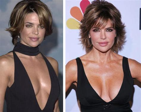 Microapartments by Lisa Rinna Before And After Plastic Surgery Lisa Rinna
