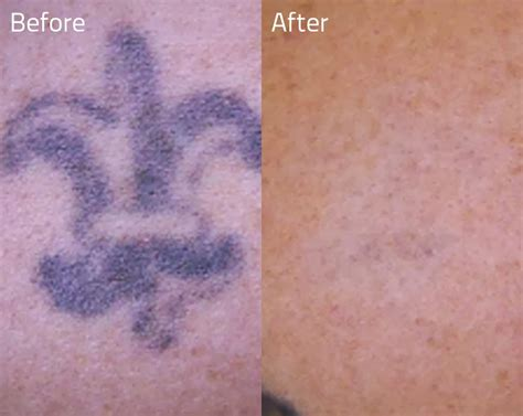 erase tattoo removal removal ideas and pictures foot designs for