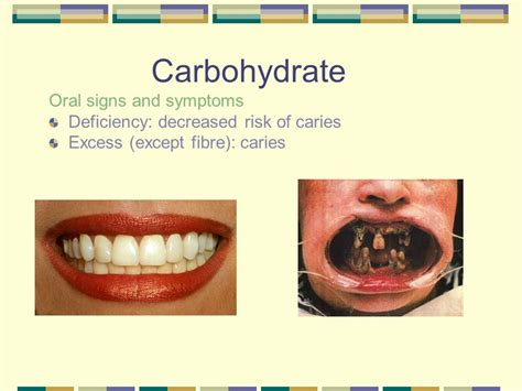carbohydrates disease nutrition in dentistry ppt