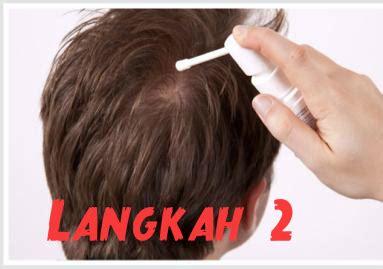 Hair Dryer Yg Bagus Apa Ya cara pakai terapi mengobati botak