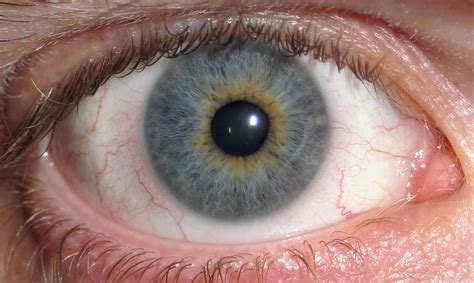 eye color typical eye color