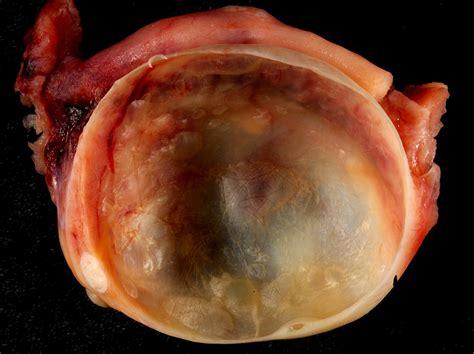 cyst on ovarian cyst