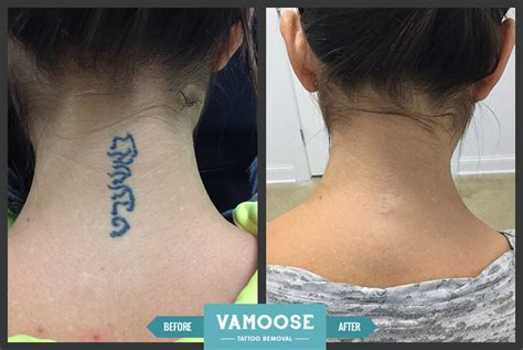 face tattoo removal before and after neck removal chicago il vamoose