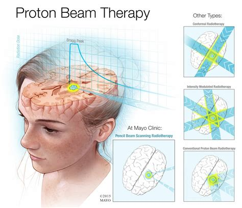 Proton Beam Radiation Therapy by About Proton Beam Therapy