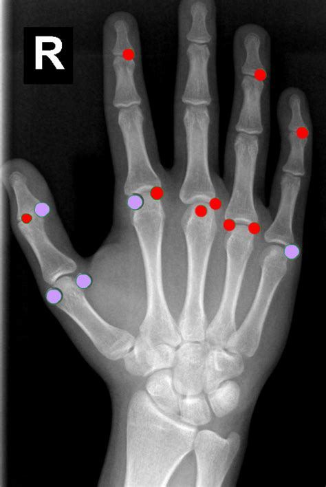 and this accessory found in ring left index finger and comes with ecr 2014 c 1817 mapping the extras supernumerary