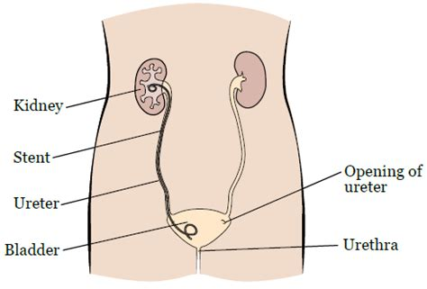 Kidney Stent Placement Pictures