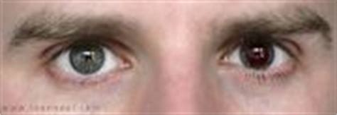 Contact Lenses For Color Blindness color blindness can colored contacts help you colblindor