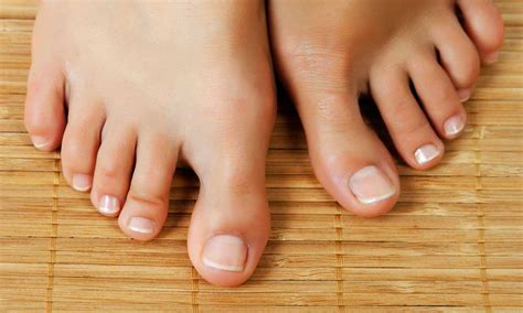 Toe Nail Care by 8 Myths And Facts About Toenail Fungus That You Should