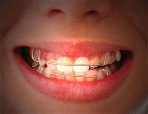 Berapa Biaya Pemutihan Gigi Ke Dokter berbagai jenis behel yang ada saat ini audy dental