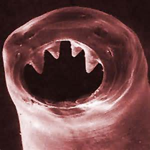 an update on hookworms radiolab