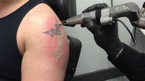 new tattoo removal technology new technology makes laser tattoo removal faster more