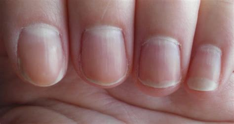 white fingernail beds white half moon shape at the nail beds causes and