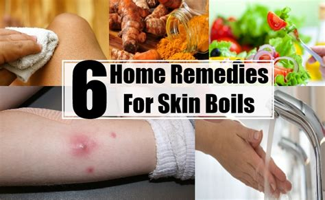 home remedies for skin boils treatments cure