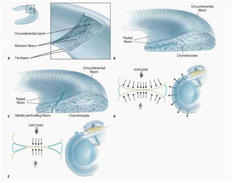 inner tear arthroscopic meniscectomy musculoskeletal key